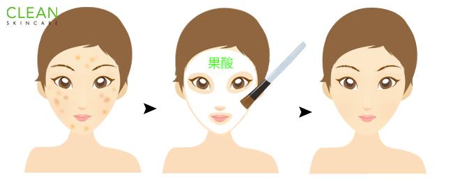 果酸換膚作用-安全或有效嗎