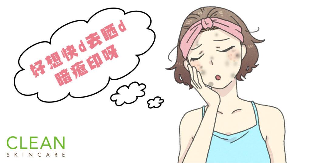 CLEAN-小知識:激光點解能解決暗瘡印問題-(To-post-on-1-May)