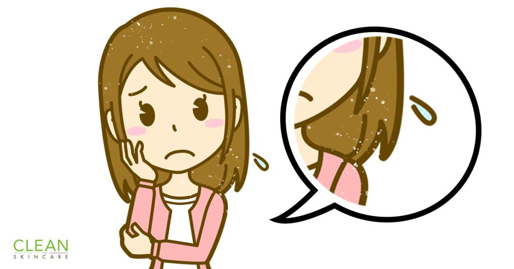 CLEAN Blog - 點解會有頭皮屑?