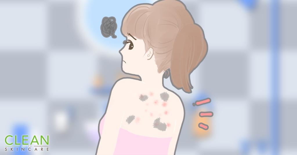 CLEAN Blog -濕疹後點解會留下黑色印