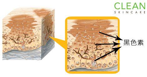 深層斑(如荷爾蒙斑)點解需要進行較多次激光療程-(To-post-on-11-Apr-16)