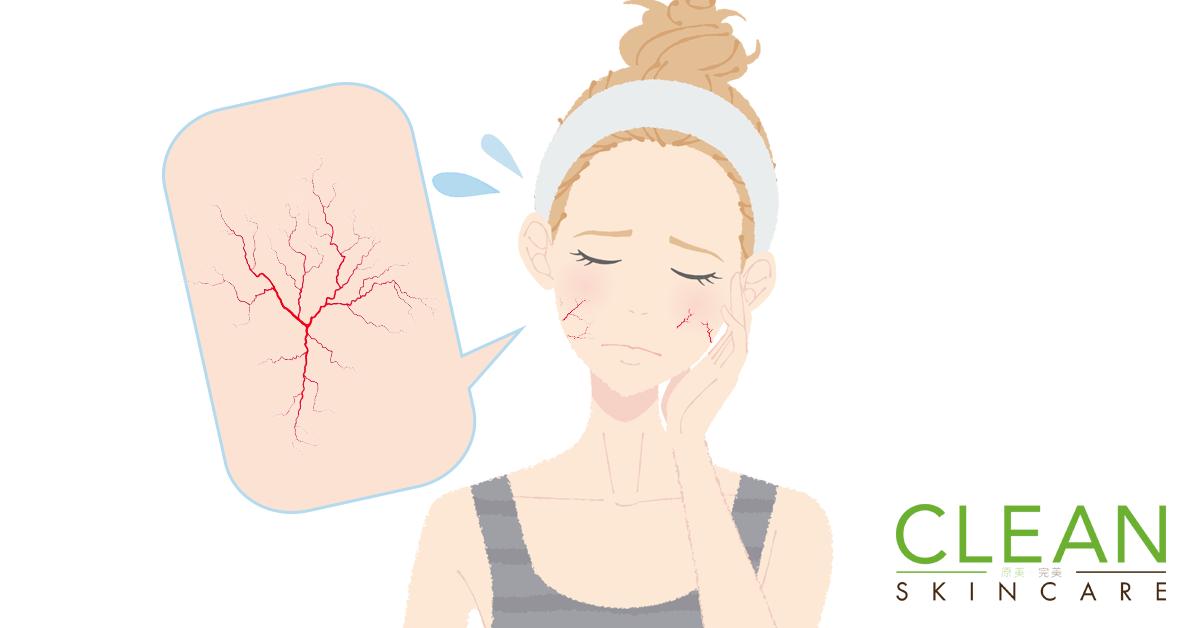 CLEAN Blog - 點解面上顯現微絲血管?