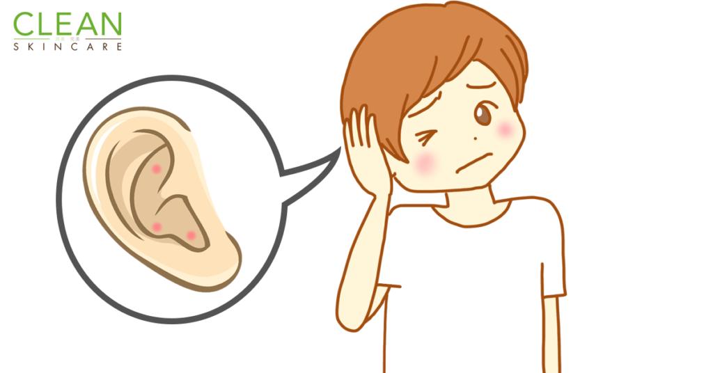 CLEAN Blog - 耳殼生瘡