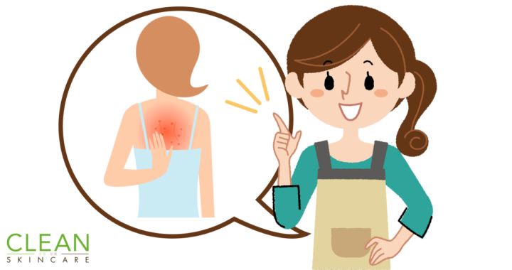 CLEAN Blog - 點解背部生瘡架?