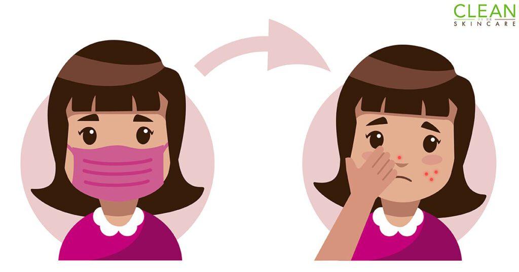 CLEAN Blog - 點解帶口罩會帶到出晒瘡